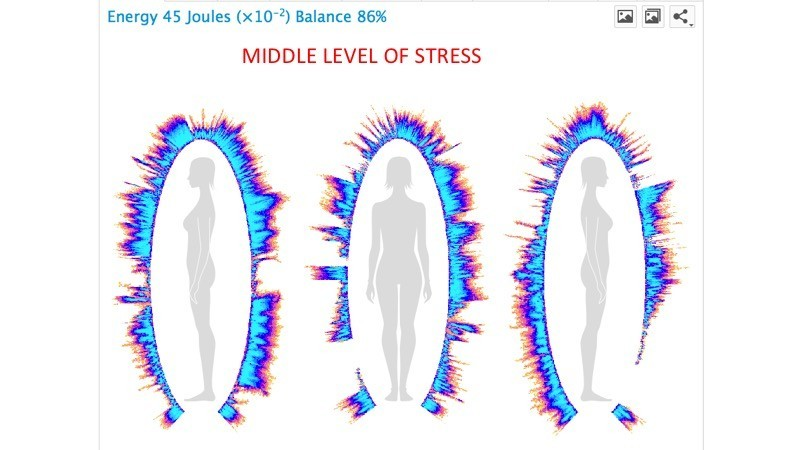 Middle level of Stress BioField, Korotkov's images