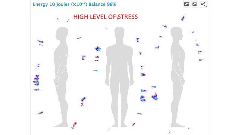 High level of Stress BioField, Korotkov's images