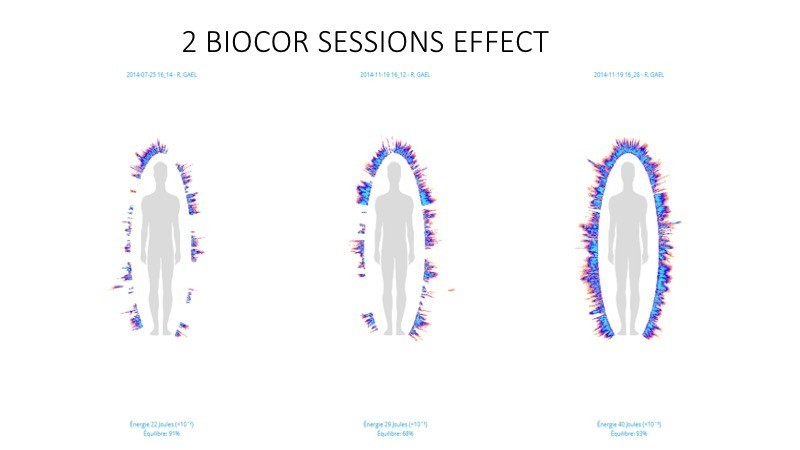 GDV Biocor effect, 2 sessions